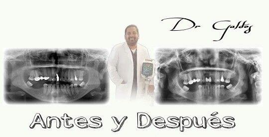 Rehabilitación Dental,  Coronas de Porcelana Contacto + 56 9 84091574 Dr. Ignacio Galdós Barcia  Iquique, Chile