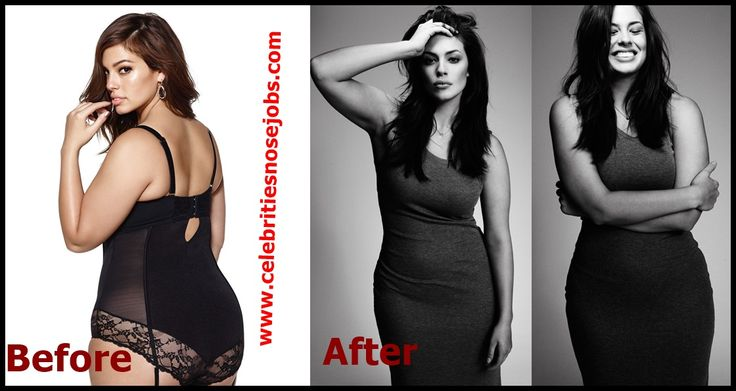 Breast Reduction Before And After Weight Loss ...