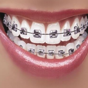4 Top Dental Surgery For Perfect Teeth