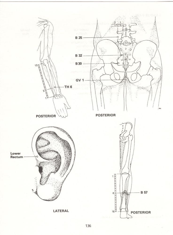 ANAL Pain (Haemorrhoids)