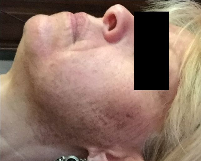 5 DAYS POST PROCEDURE FROM 360 PIXEL LASER TREATMENTS.SKIN IS BEGINNING TO COMPLETELY HEAL AND IS ALMOST READY FOR A MICRODERMABRASION.