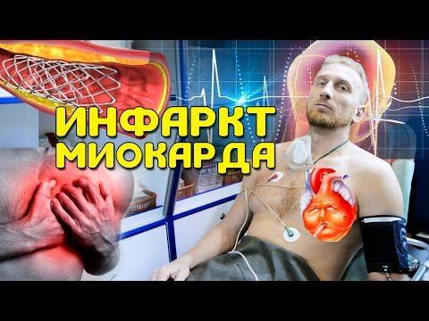 ДОКТОР УТИН, у меня инфаркт миокарда? - YouTube
