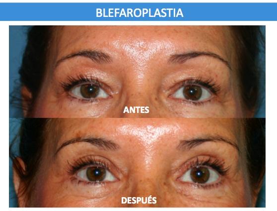 Blefaroplastia - Operación de párpados