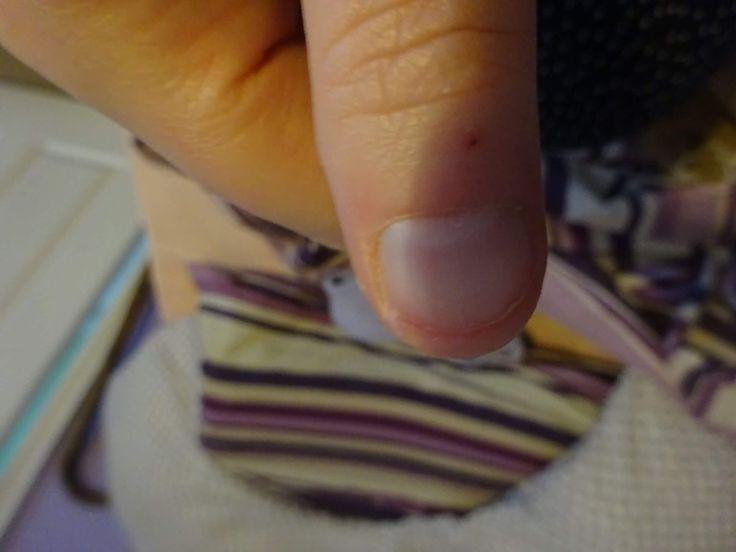 14th February 2017 - something broken. My thumb nail.