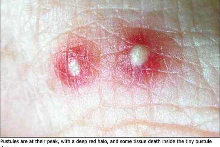 Remedios caseros para aliviar la picadura de la hormiga de fuego   Muy Fitness