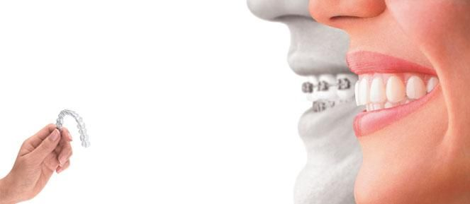 Orthodontics is the branch of dentistry that specializes in the movement of teeth using braces and removable appliances to make the corrections involving straightening of the teeth and improving the bite. Read our blog http://altamashclinic.blogspot.com/2017/04/say-hello-to-beautiful-smile.html #Orthodontics #Aligners #Smile #Braces #AltamashDentalClinic #ADC #DentistInKarachi #AltamashDentalClinicPakistan #Dentistry