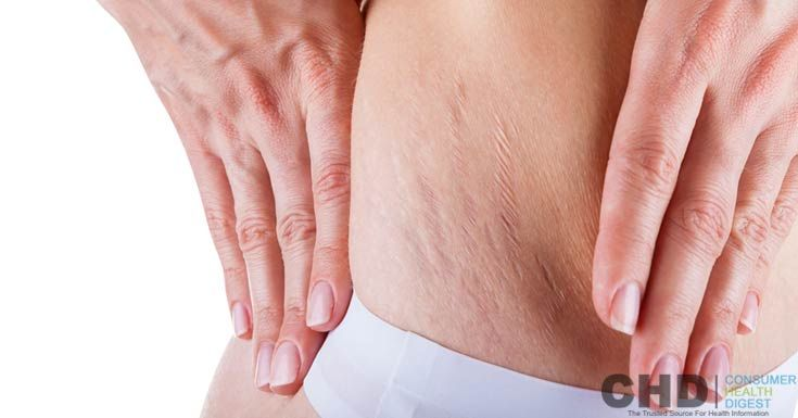 Can We Use Fraxel Laser Treatment for Stretch Marks? https://www.consumerhealthdigest.com/stretch-marks/stretch-marks-faqs/fraxel-treatment-for-stretch-marks.html