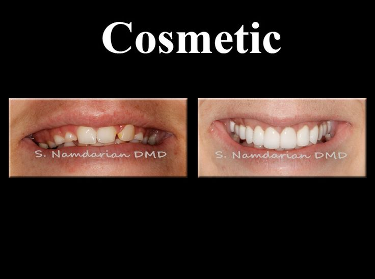 #Cosmetic #Dentistry #Dentist #Doctors #Invisalign #Implant #Veneers #Teeth #Healthy #Smile #Makeover #Fresno #Clovis For more information please visit our website: www.fresnosmilemakeovers.com