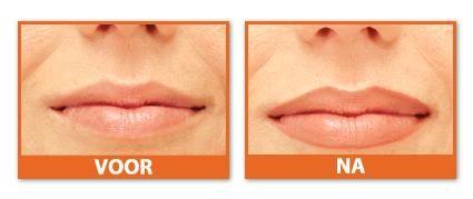 Voor & Na foto's|Permanente Make-up|HILDE VAN PEER Beautyconsult | 20 jaar ervaring