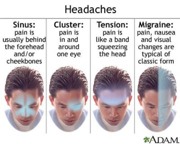 """headaches - very informative.  Evidently I have confused some of my """"sinus"""" headaches with cluster headaches."""