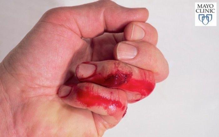 Αποκάλυψη Το Ένατο Κύμα: Ο καλύτερος τρόπος να σταματήσετε την αιμορραγία