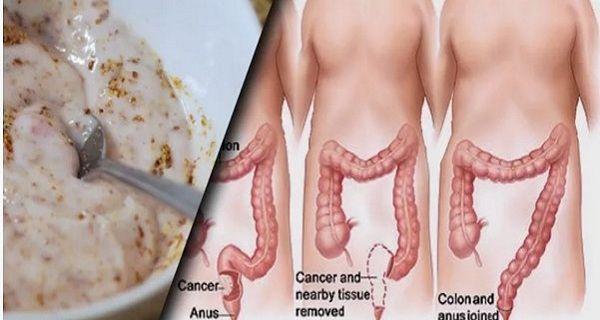 Эти два ингредиента выведут токсины(кефир и семена льна)
