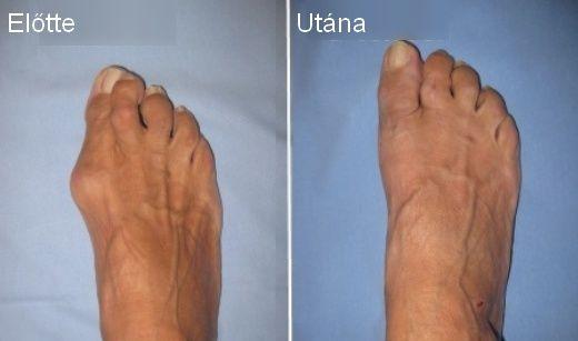 Nemcsak nagyon ronda a bütyök, de rettenetesen fájdalmas is tud lenni, nem tudsz rendes cipőt viselni, sokszor még a járás is nagyon fáj. Nem csoda, hogy sokan rászánják magukat a műtétre, ami visz…