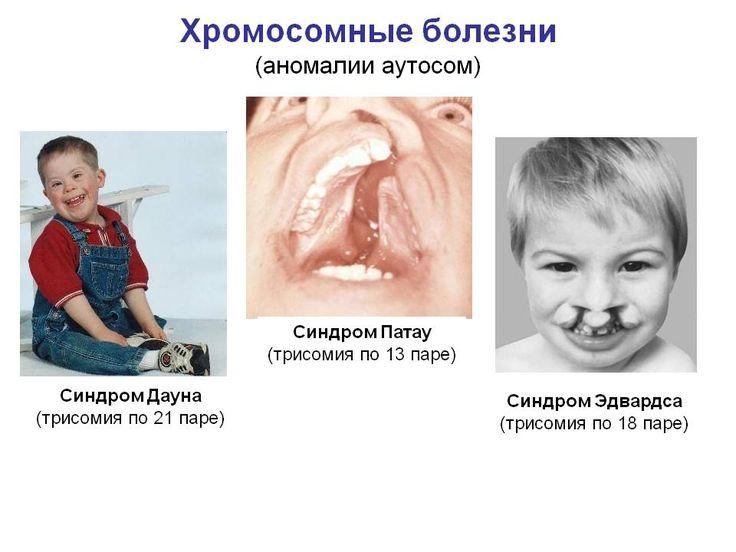 внутриутробное развитие человека - Поиск в Google