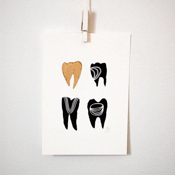 Dents en or symbolique j'imprime