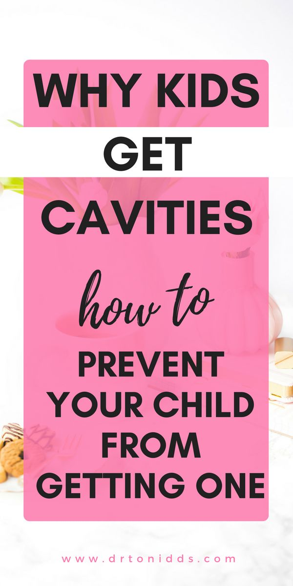 Want to prevent your child from getting cavities? Read this post on how to prevent your kids from getting cavities. This post explains how cavities are formed and habits you can help instill to prevent cavities in the future.   | kid with cavity | prevent cavities in kids | prevent cavities kids | keep kids cavity free | cavities | cavities in babies