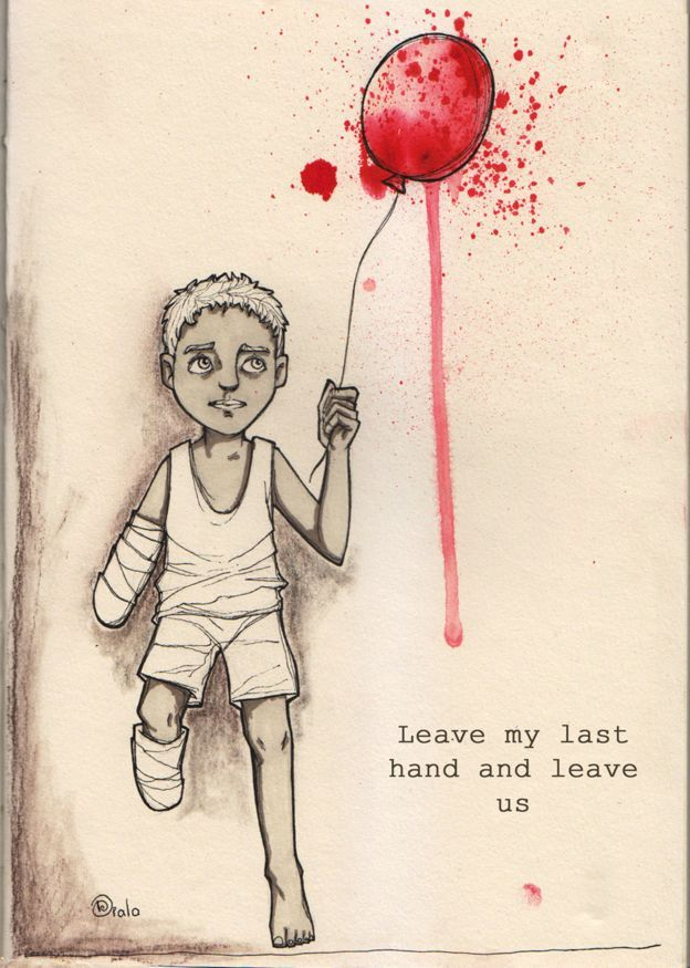 Boy who has lost an arm and a leg holding a blood-spattered balloon