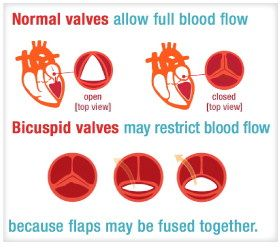 clear visual explaining aortic stenosis