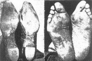 """Pies """"civilizados"""", que han crecido y vivido con zapatos."""