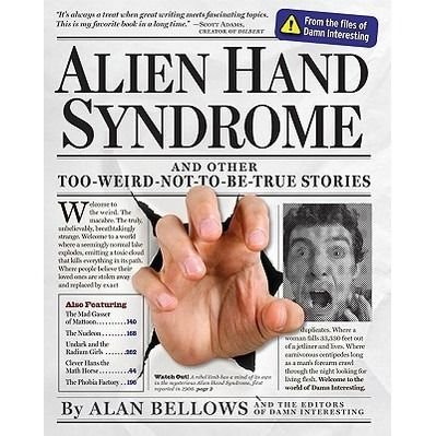 Alien Hand Syndrome and Other Too-Weird-Not-To-Be-True Stories ~ Pinned via NoName Given http://www.goodreads.com/book/show/6366807-alien-hand-syndrome-and-other-too-weird-not-to-be-true-stories