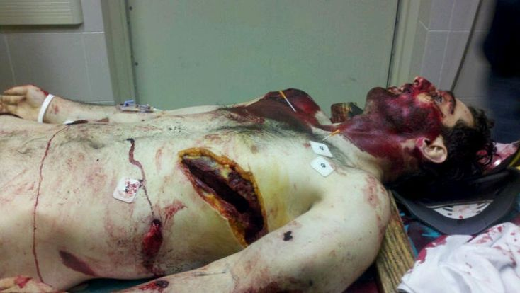 ★WARNING VERY GRAPHIC!!!!!!★ BOSTON MARATHON BOMBER Tamerlan Tsarnaev DEATH PHOTO SURFACES