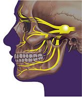 Trigeminal Nerve- Cranial Nerve 5. Most of the function of the trigeminal nerve is sensory, which means it transmits pressure, touch, pain, and temperature signals to the brain. Only the mandibular branch of the trigeminal nerve has some motor (controls movement) function. Trigeminal Neurolgia - Causes... Shingles, Lyme disease, Herpes simplex or other viral infection, Tumor, Trauma