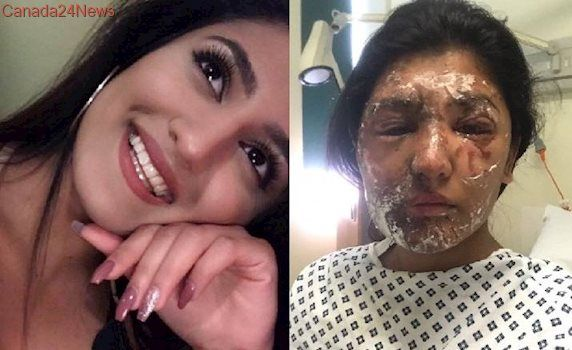 Random acid attack in London leaves woman, cousin with severe burns