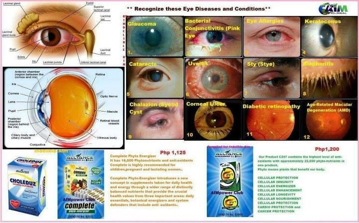 If you have this eye problem please take our big 3C's Choleduz, Complete and C24/7.