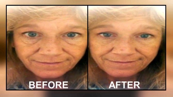 INSIDE EDITION checks out a so-called 'miracle' serum and asks women to try it out on their own skin -- see the results.www.rebaahicky0714.jeunesseglobal.com  Go to my site for more information