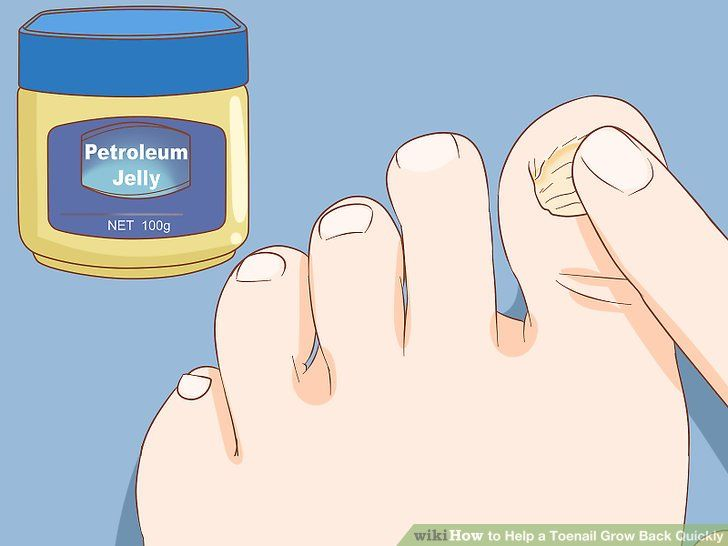 How To Help A Toenail Grow Back Quickly 15 Steps With Pictures Toe Nails How To Grow Nails Toenail Coming Off