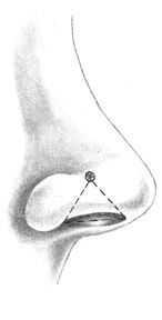 The traditional placement for a nostril piercing is at the crease line on the side of the nose. A big smile accentuates this feature to help pinpoint the spot. This area is often thinner than the rest of the nose, so it may heal faster and feel less tender when pierced. The jewelry will rest in a natural niche, where it nestles most gracefully.
