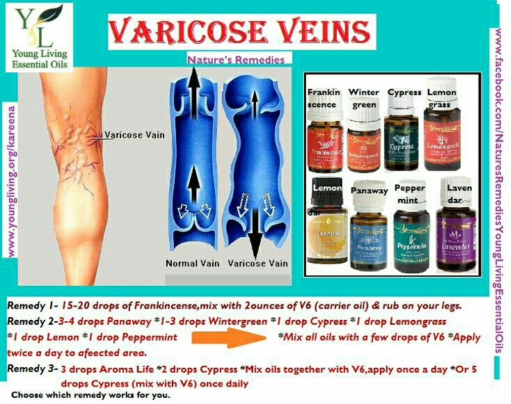 Varicose Veins Young Living Oils Pinterest Young