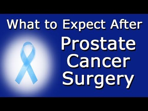 What to Expect After Prostate Cancer Surgery - WATCH THE VIDEO.    *** prostate cancer surgery ***   Related: Signs Of Prostate Cancer What Is Prostate Cancer? Prostate Cancer Stages General Prostate Cancer Survival Rate What to Expect After Prostate Cancer Surgery A prostatectomy is a surgical procedure in which all or part of a man's prostate gland is...