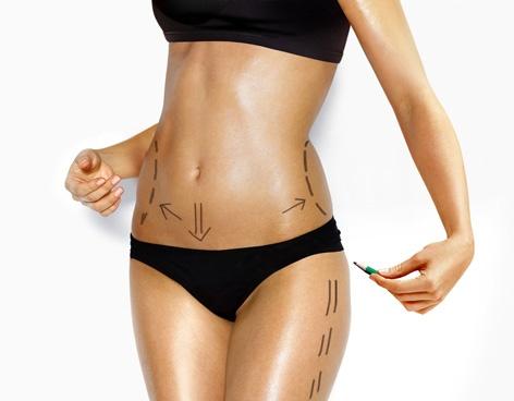 Liposucción, la preferida de cirugías estéticas - Vanguardia