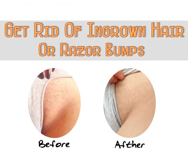 Natural Ways To Get Rid Of Razor Bumps Fast