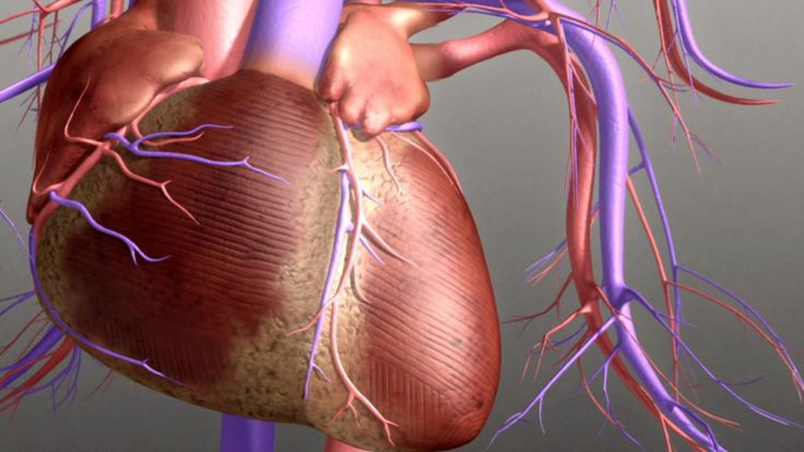 The heart is a complex and vital organ. Each day the heart pumps over 6,000 quarts of blood around your body. Congestive heart failure is a chronic progressive condition that causes the heart to weaken. There are two types of heart failure systolic & diastolic. In this video, Dr. Holly Atkinson looks at how the heart works and what exactly happens when there is heart failure.