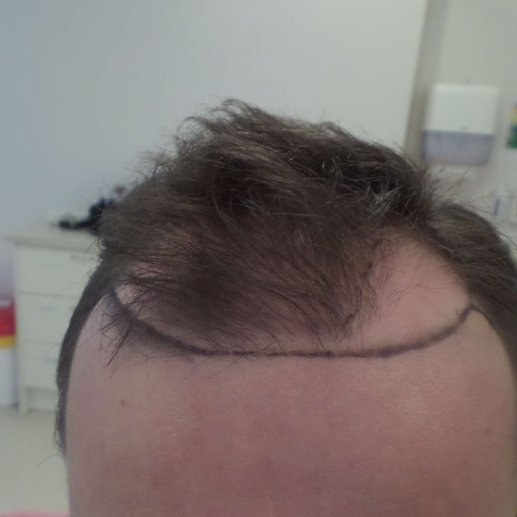 The 16 Best Before And After Hair Transplant Procedure Rubenhair