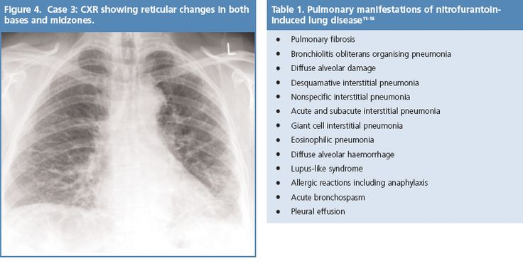 restrictive pulmonary disease pdf free