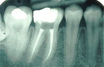 Root Canals - The Whole Truth: An x-ray of a molar with a root canal treatment
