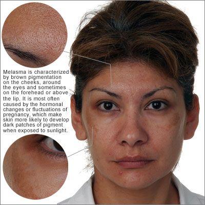 54 best images about skin melasma hyperpigmentation on pinterest alpha hydroxy acid sun and. Black Bedroom Furniture Sets. Home Design Ideas