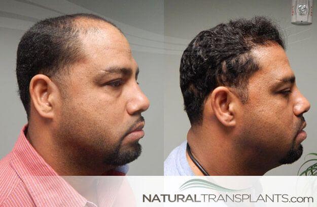 Hair Transplant Near Me Feelgoodfriday Followfriday