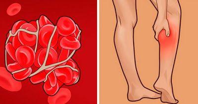 Признаки тромбов в кровеносных сосудах, и что делать, если вы их обнаружили