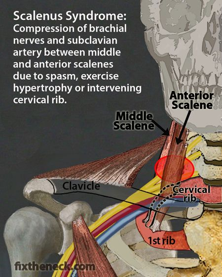 Overcoming Chronic Neck Pain: Postural Causes and A Unique ...