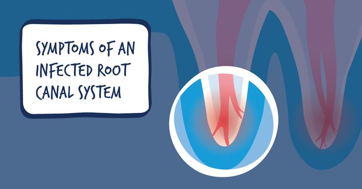 Symptoms that require root canal treatment:  - Severe pain in the teeth while consuming hot/cold things - Pain in the teeth while chewing food - Swelling can be seen around the teeth - Breaking, discoloration of the teeth - Constant & throbbing tooth pain - A pimple can be seen on the gums, which releases pus/blood when pressed.