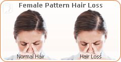 menopause | hair/facial hair: hair loss | pinterest | hair, sudden, Skeleton
