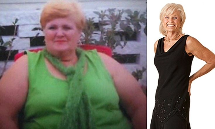 Morbidly obese woman loses 250LBS after cutting out binge ...