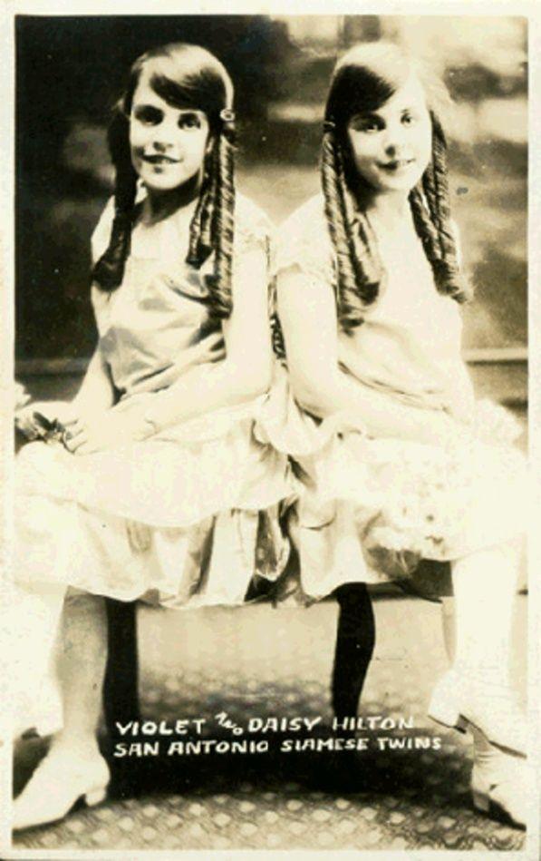 Violet and Daisy Hilton, San Antonio Siamese Twins