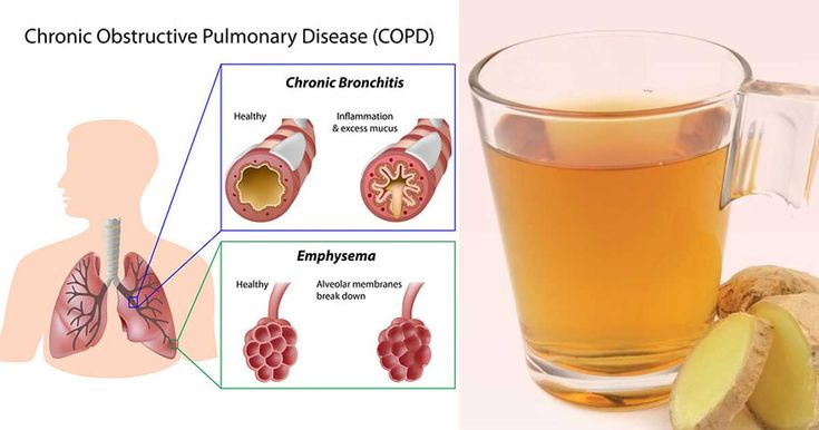 Bronchitis is a respiratory tract infection that is much more problematic than the common cold. People start to cough and have shortness of breath. This lower respiratory tract infection may be scary for some, but