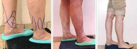 HATE YOUR CANKLES??   Liposuction can be used in the ankle area to give your legs a firmer, smaller appearance.