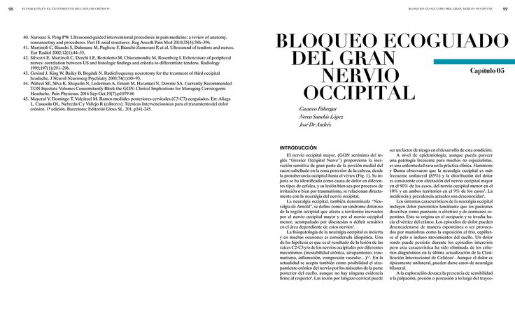 BLOQUEO ECOGUIADO DEL GRAN NERVIO OCCIPITAL